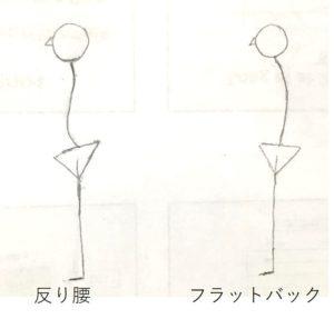 2種類の不良姿勢。反り腰とフラットバック