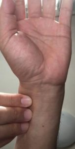 心拍測定(橈骨動脈)
