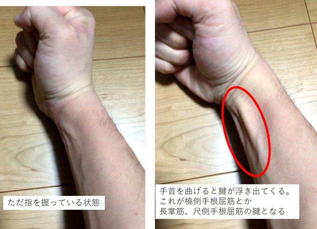 手首を曲げる前腕の筋肉