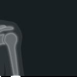 肩のインナーマッスルのトレーニング方法